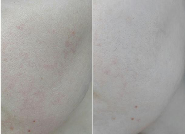 Тиогамма: целесообразность и правила применения для омоложения кожи лица