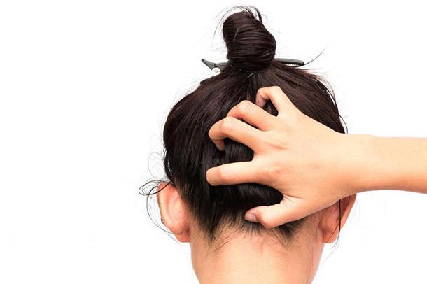 Жирная себорея волос лечение
