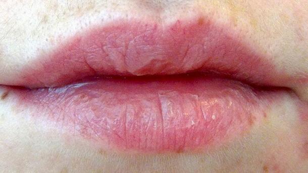 Чрезмерно сухая кожа губ