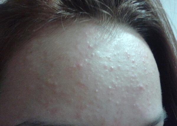 Почему появляется сыпь на плечах после массажа