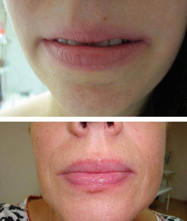 Аллергическое воспаление губ