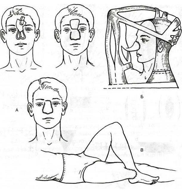 Пересадка кожи после ожога у детей и взрослых на лице: показания к процедуре и как проходит операция, длительность восстановления и возможные осложнения