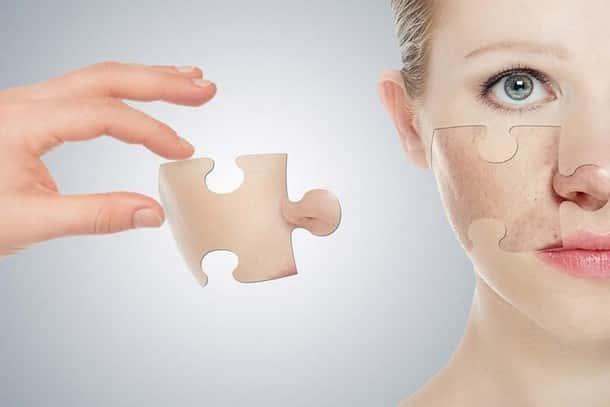 Наращивание кожи на лице