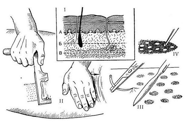 Наращивание кожи на лице thumbnail