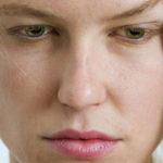 Отеки лица: как быстро снять симптомы