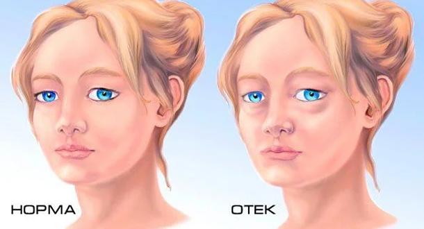 Отекло лицо после жидкости