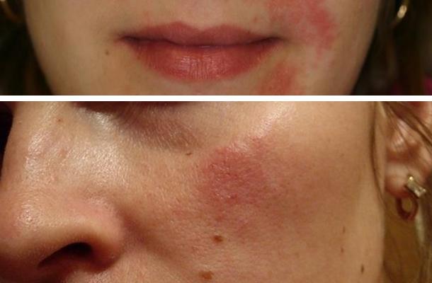 Аллергия после маски для лица