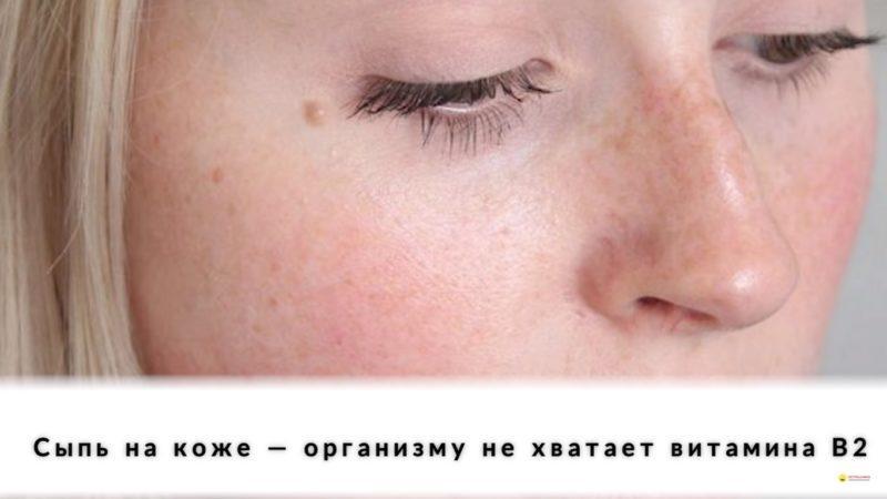 Нехватка витаминов отражается на коже