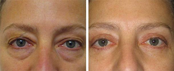 Результат после применения препарата Троксевазин