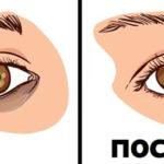 Средства от синяков под глазами: выбираем наиболее эффективное средство