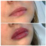 Рекомендации после контурной пластики губ
