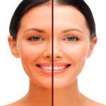 Как избавиться от загара на лице: лучшие косметологические процедуры и народные средства