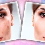 Как быстро убрать пигментные пятна на лице в домашних условиях – лучшие средства