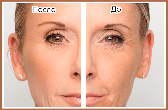 Кожа до и после применения гиалуроновой кислоты