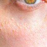 Как бороться с белыми прыщами на лице — эффективные методы и профилактика