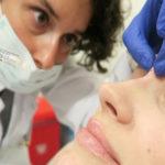 Причины появления горбинки на носу —  как убрать эстетический дефект