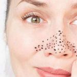 От чего появляются черные точки по всему лицу — чем грозит не лечение болезни