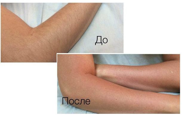 До и после эпиляции рук воском