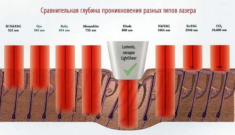 Глубина проникновения разных типов лазера