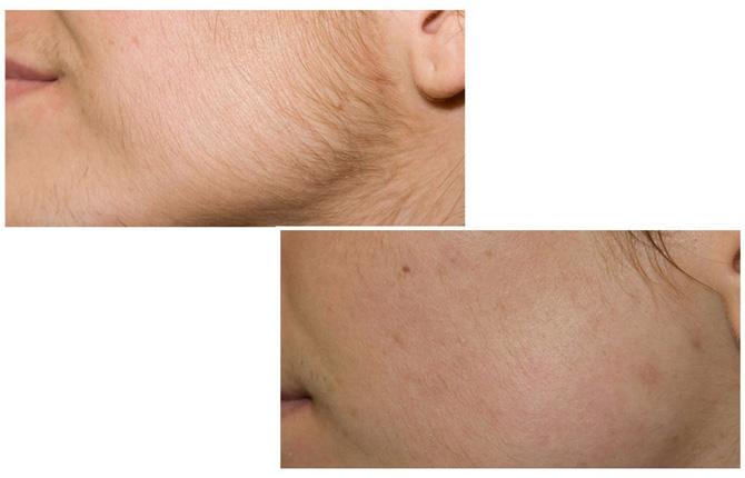 Фото до и после фотоэпиляции лица
