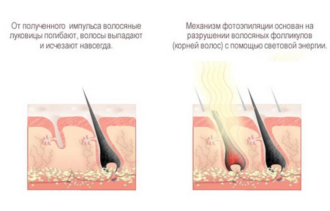 Нужно ли удалять волосы перед эпиляцией