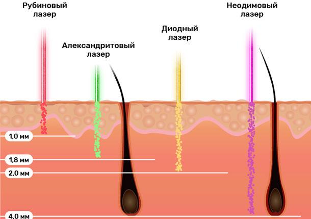 Подготовка к лазерной эпиляции