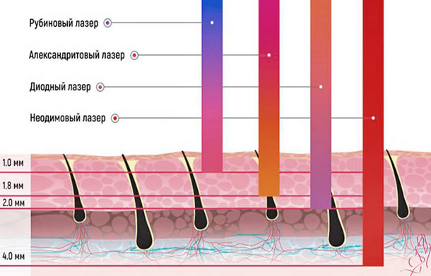 Глубина воздействия лазера и глубина залегания волос