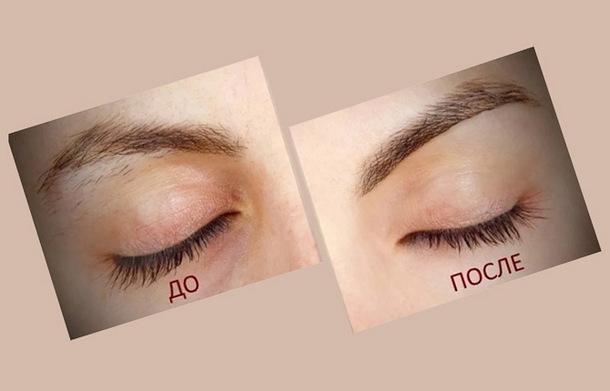 Брови до и после лазерной эпиляции