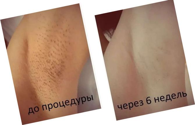 Лазерная эпиляция до и после