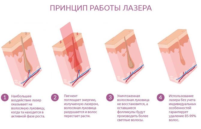 Принцип работы лазера при эпиляции