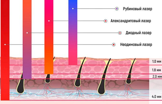 Глубина действия различных типов лазера