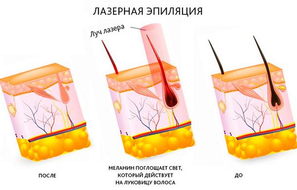 Луковица волоса до и после лазерной эпиляции