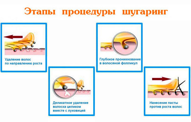 Этапы процедуры шугаринг