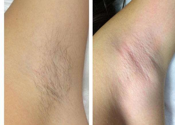 До и после эпиляции подмышек воском